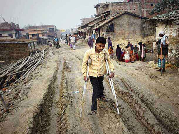 The majority of physically disabled people in india are affected with Polio. The virus leads to disfigurement in varying degrees – sometimes unnoticeable. Polio can cause permanent paralysis of the limbs of those who aren't vaccinated against it. Whatever the disfigurement, Polio has no effect on the brain, nor on a person's ability to go to school or hold down a good job.